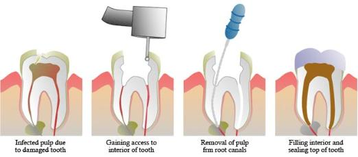 curved or narrow canals were not treated during the initial treatment canals that were not disinfected well enough during the initial procedure this